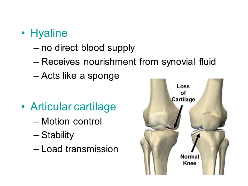 Hyaline Articular cartilage no direct blood supply