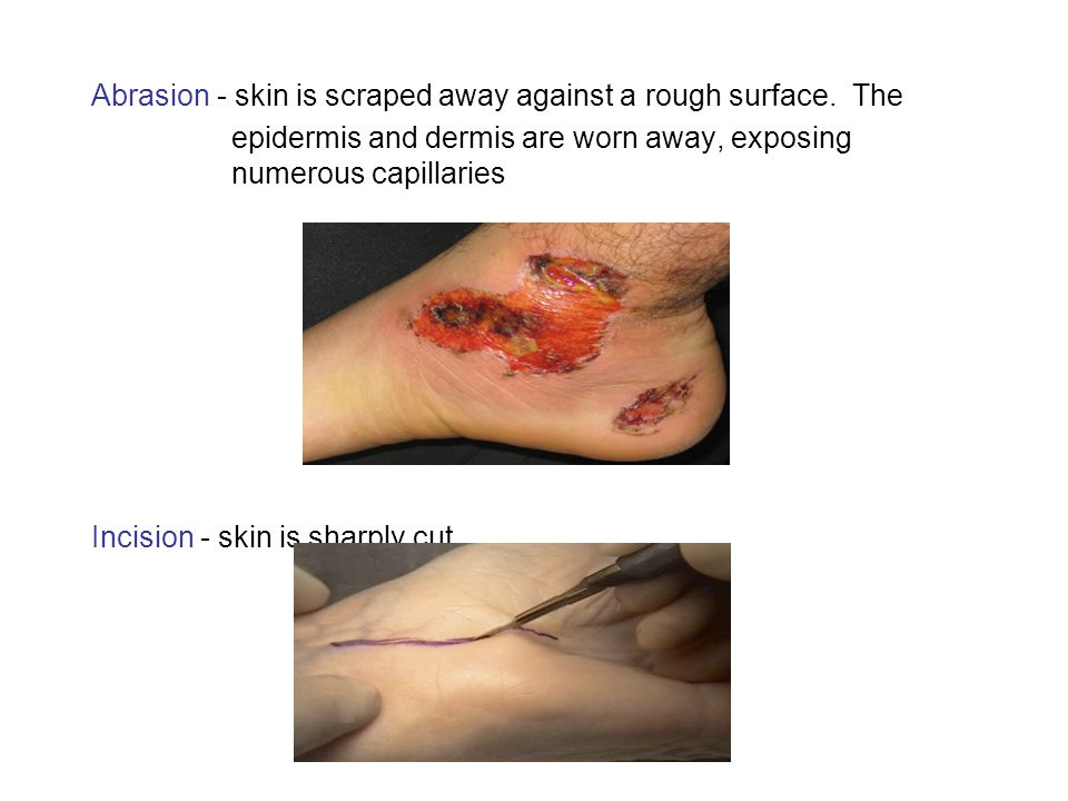 Abrasion - skin is scraped away against a rough surface. The