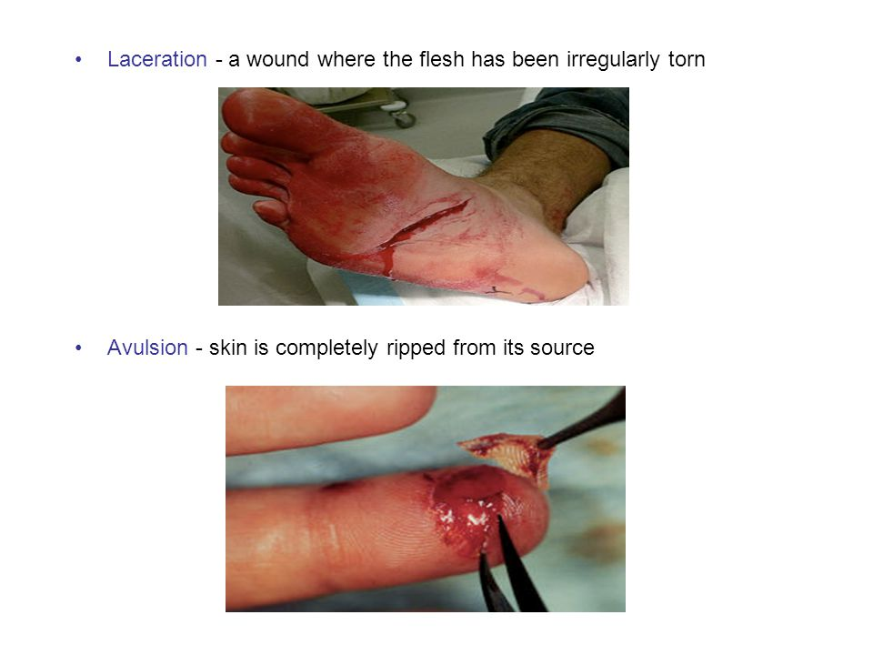 Laceration - a wound where the flesh has been irregularly torn