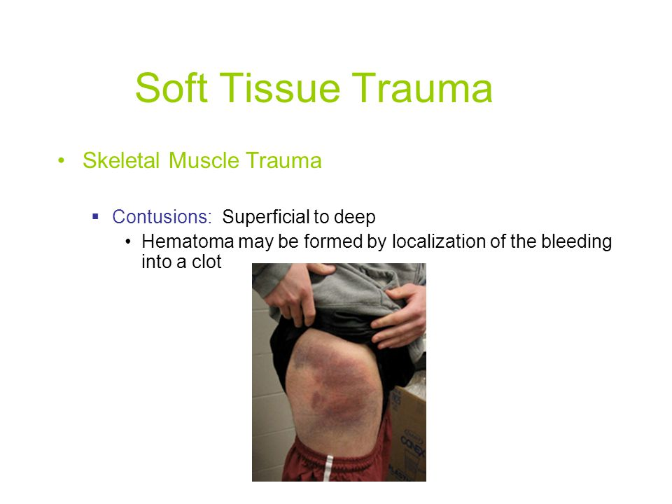 Soft Tissue Trauma Skeletal Muscle Trauma