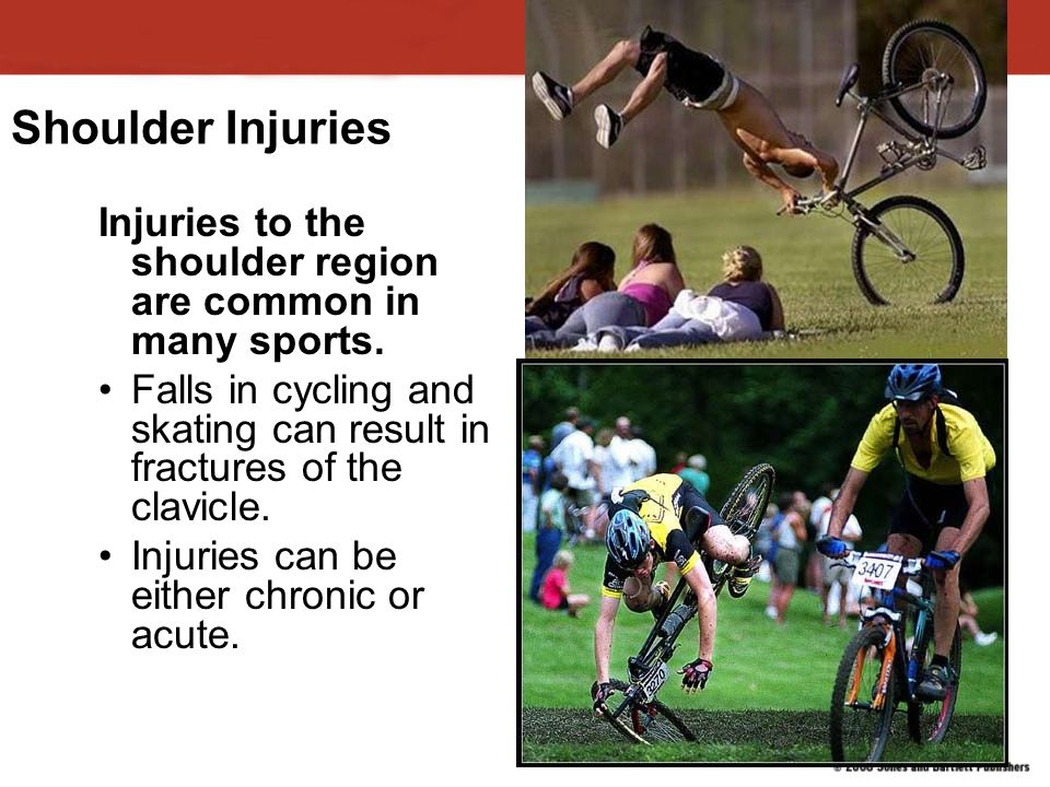Shoulder Injuries Injuries to the shoulder region are common in many sports. Falls in cycling and skating can result in fractures of the clavicle.