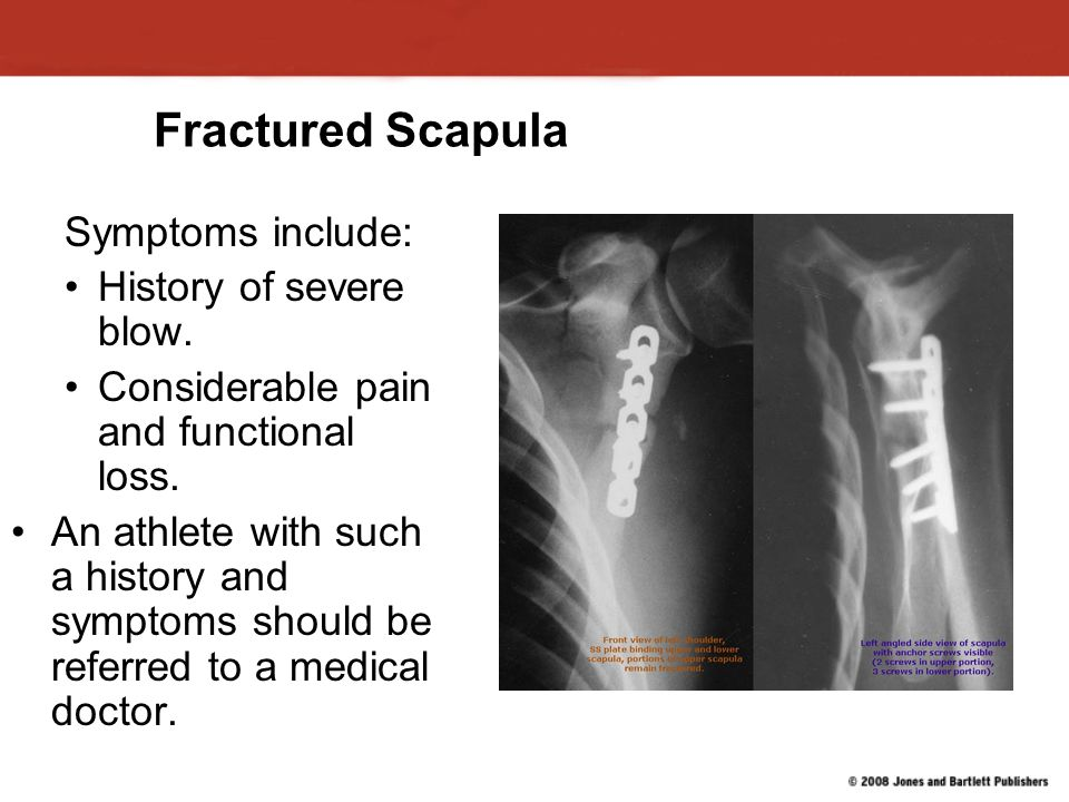 Fractured Scapula Symptoms include: History of severe blow.