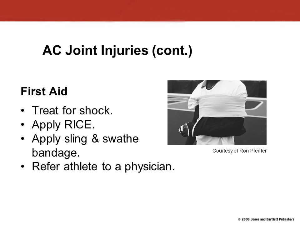 AC Joint Injuries (cont.)
