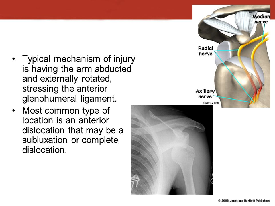 Typical mechanism of injury is having the arm abducted and externally rotated, stressing the anterior glenohumeral ligament.