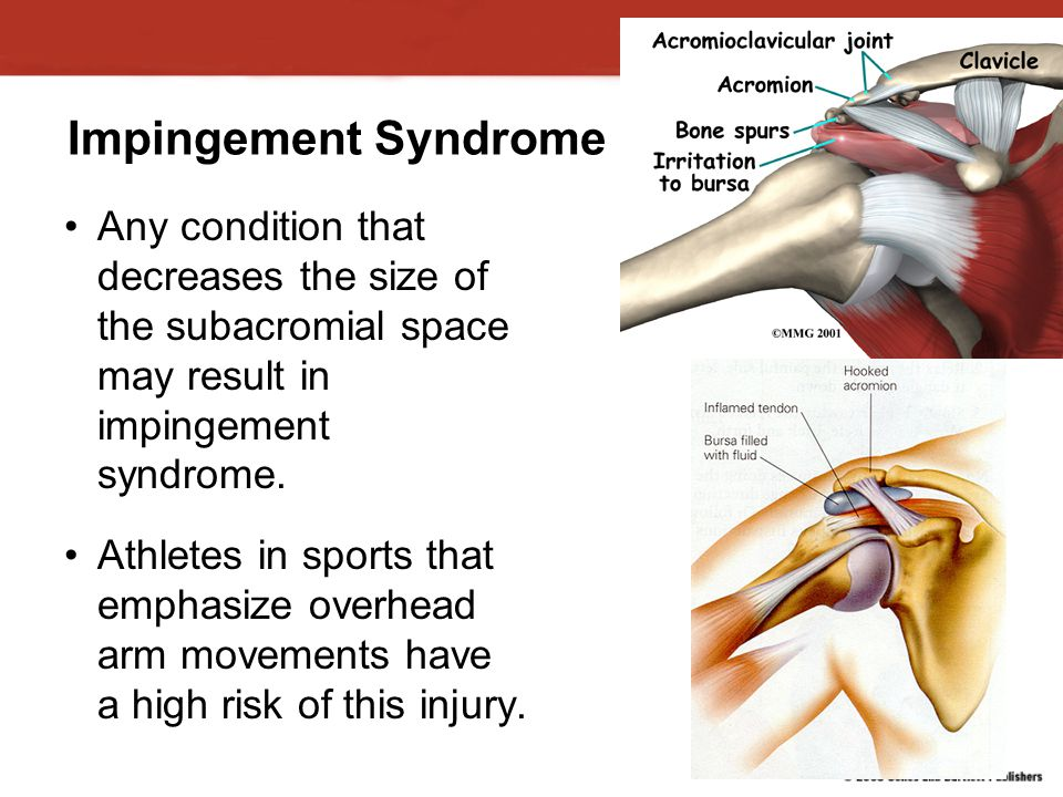 Impingement Syndrome Any condition that decreases the size of the subacromial space may result in impingement syndrome.
