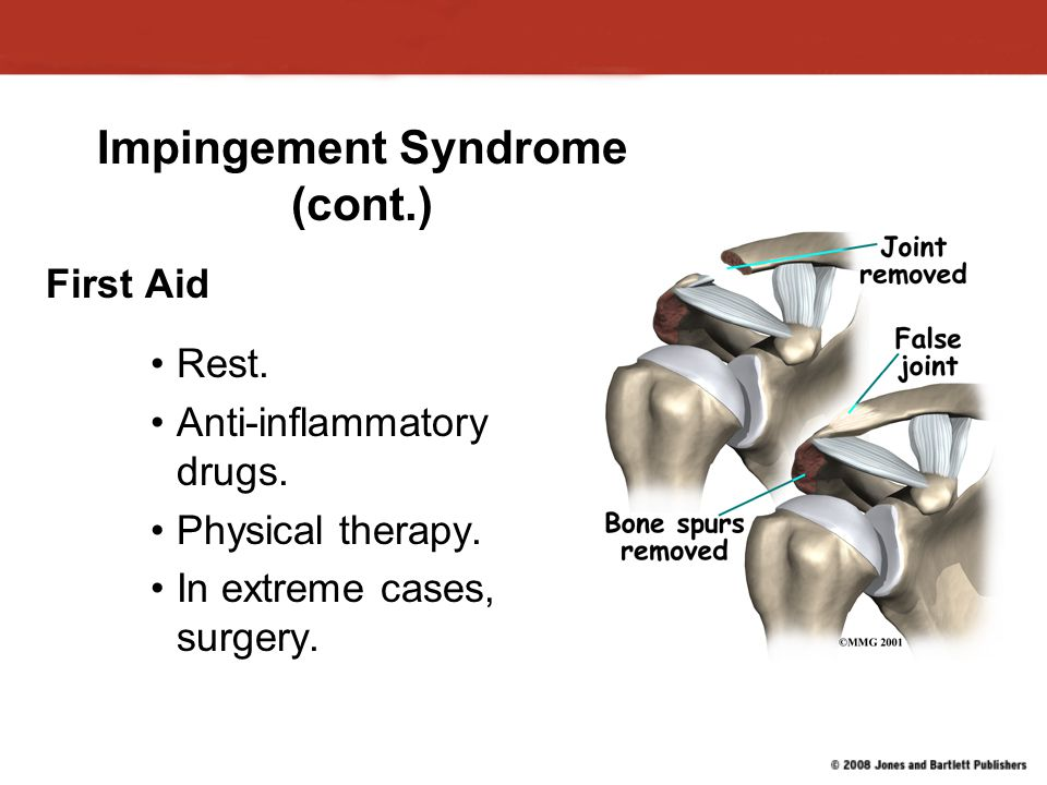 Impingement Syndrome (cont.)