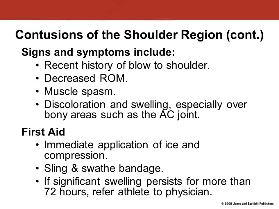 Contusions of the Shoulder Region (cont.)