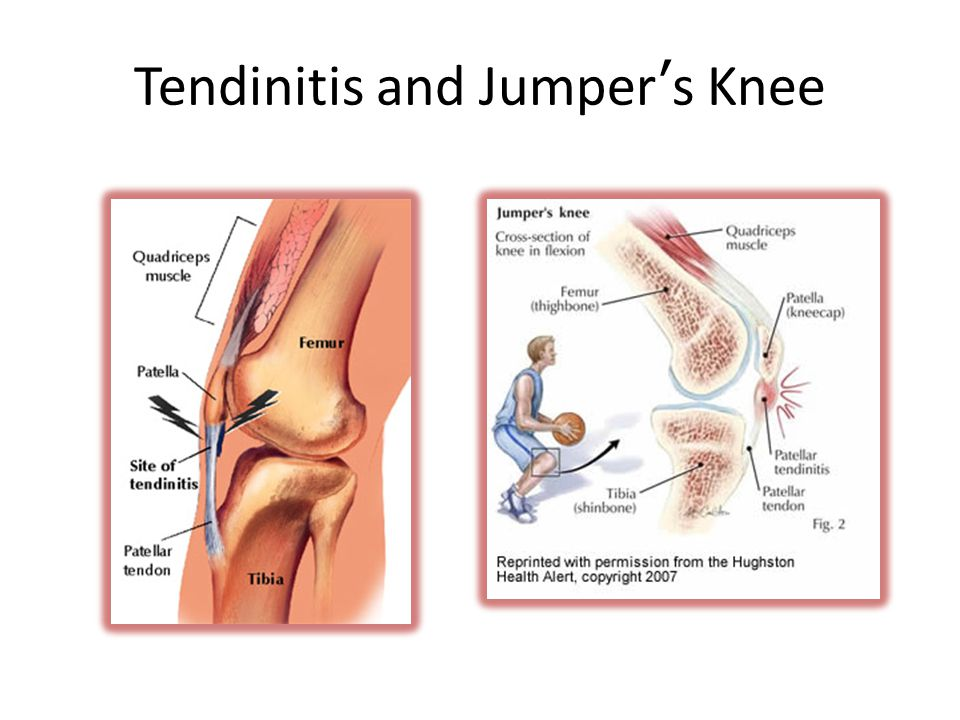 Tendinitis and Jumper's Knee