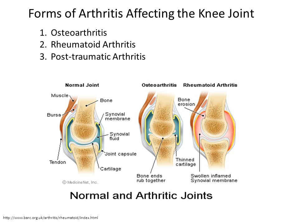 Forms of Arthritis Affecting the Knee Joint