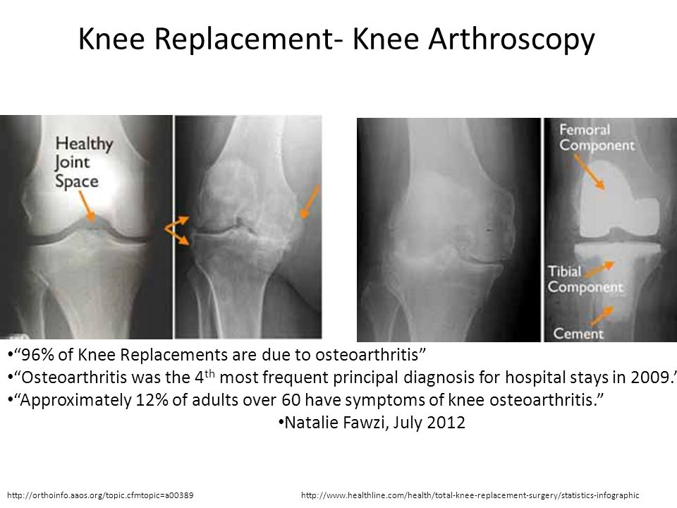 Knee Replacement- Knee Arthroscopy