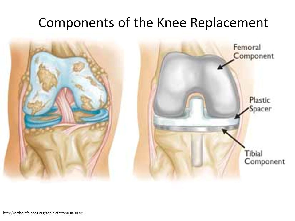 Components of the Knee Replacement