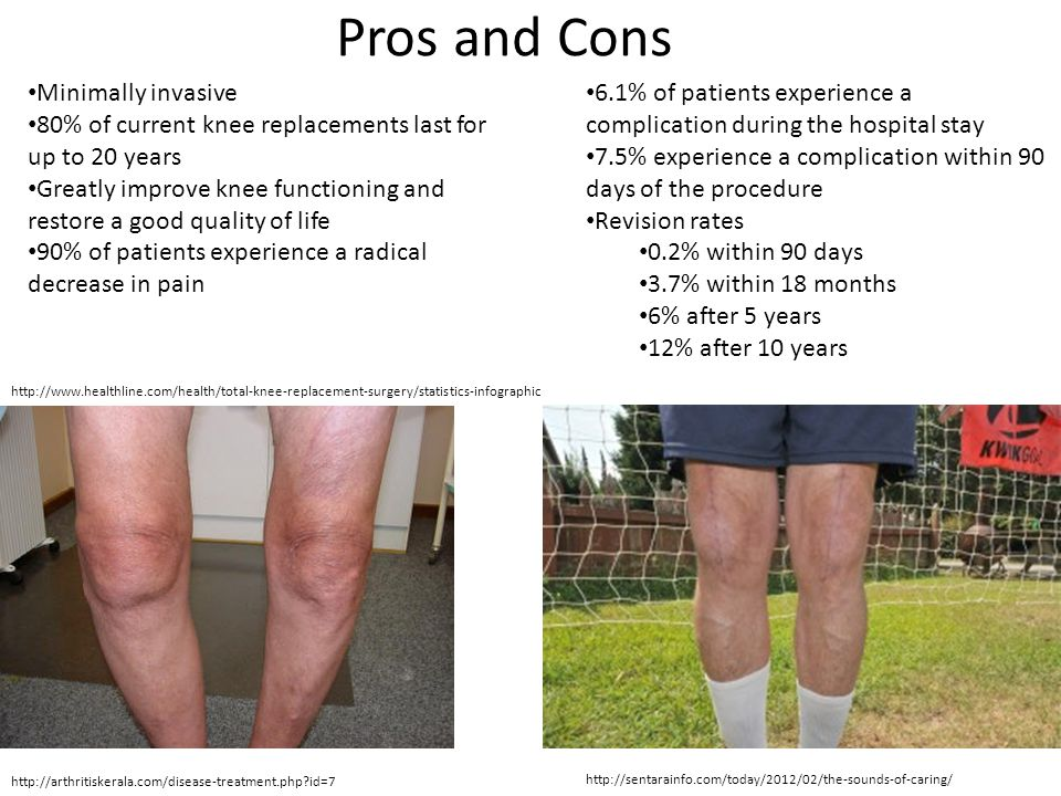 Pros and Cons Minimally invasive