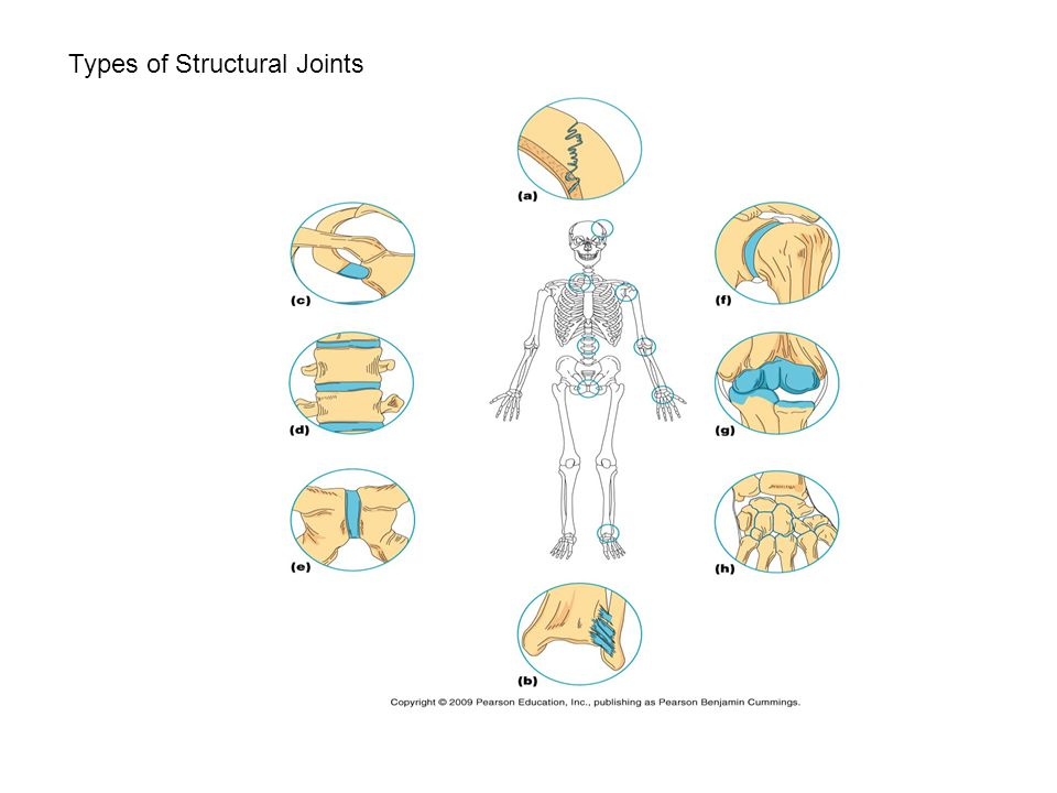 Types of Structural Joints
