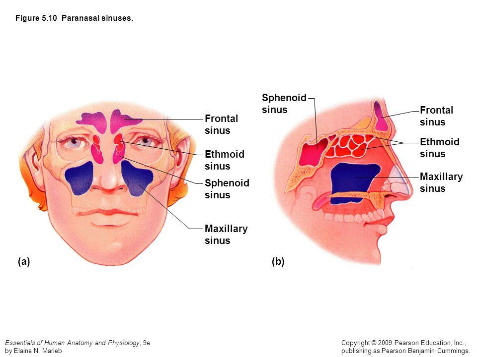 Figure 5.10 Paranasal sinuses.
