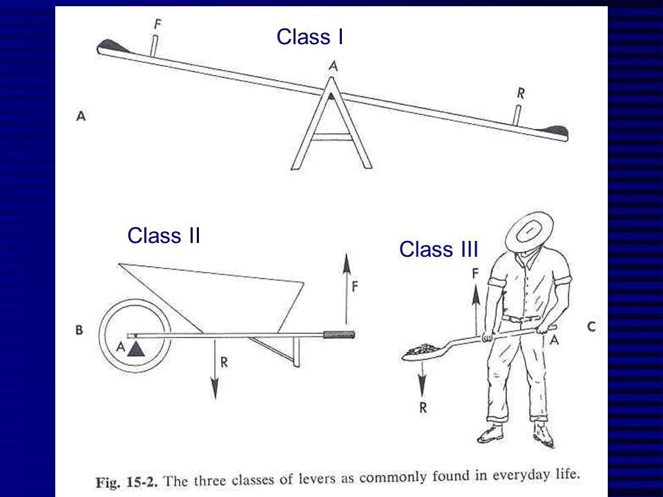 Class I Class II Class III