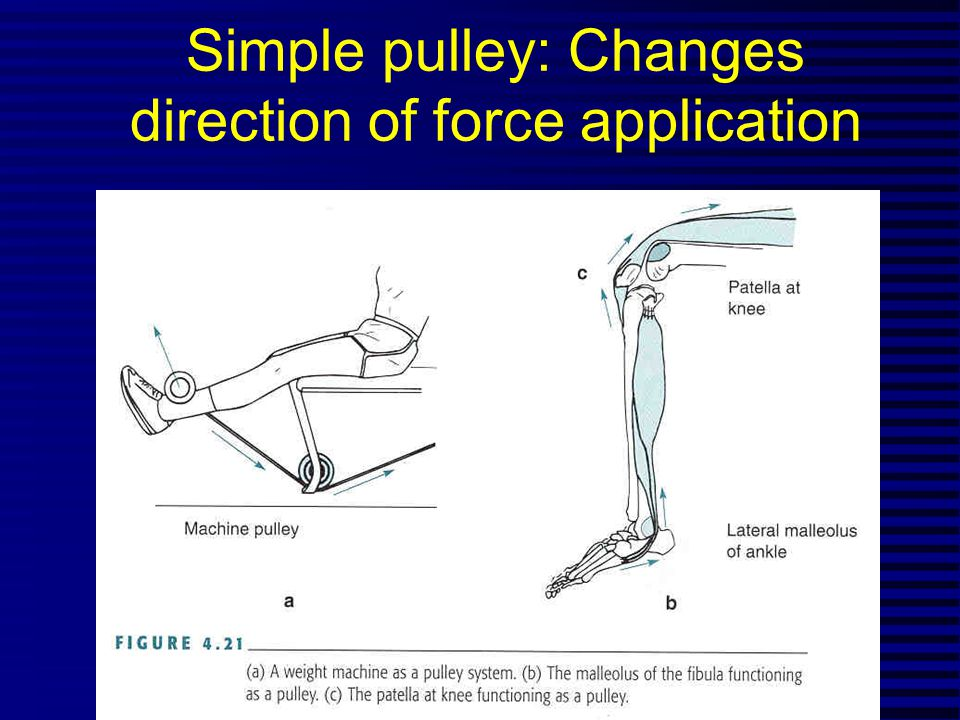 Simple pulley: Changes direction of force application