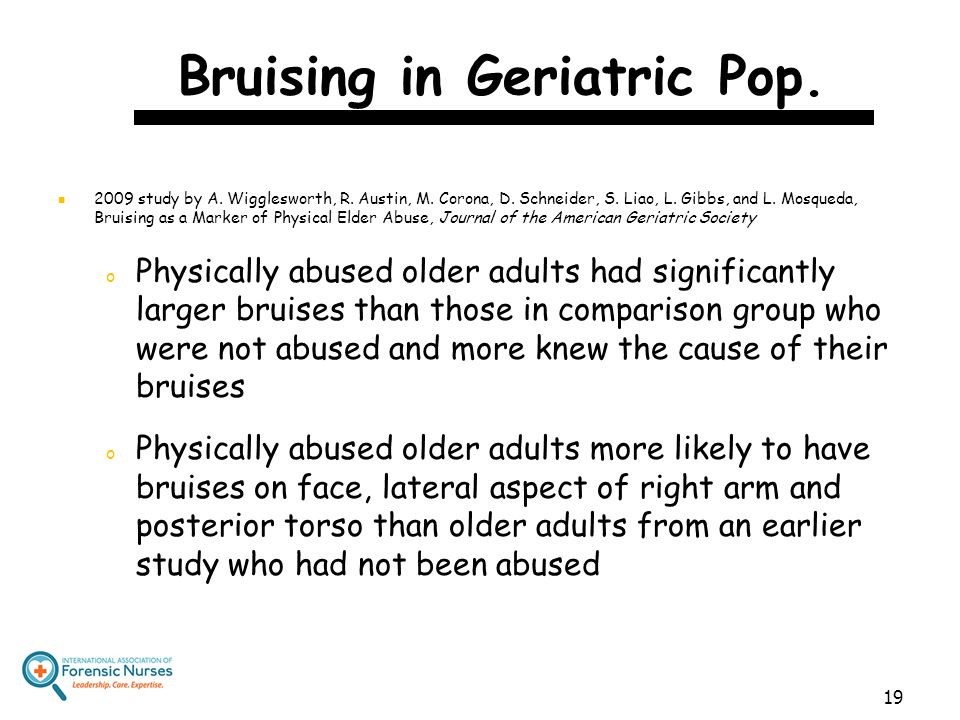 Bruising in Geriatric Pop.