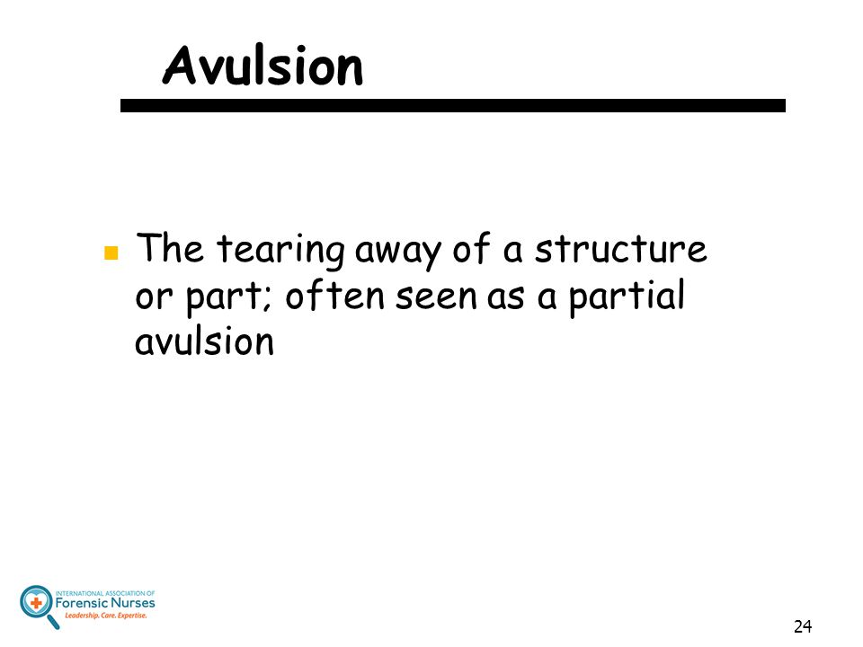 Avulsion The tearing away of a structure or part; often seen as a partial avulsion