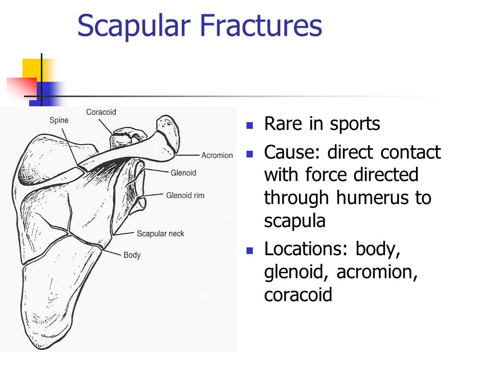 Scapular Fractures Rare in sports