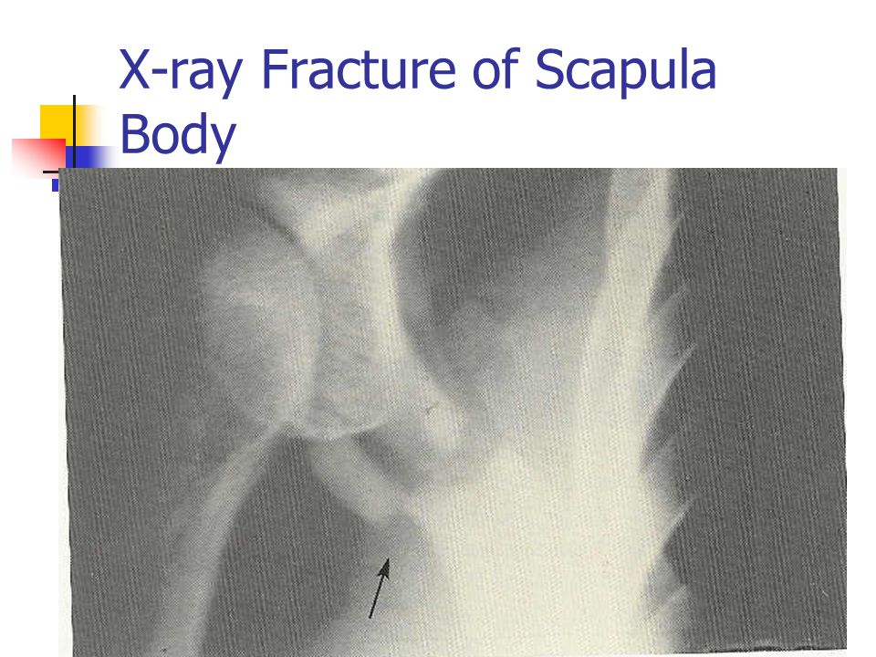 X-ray Fracture of Scapula Body