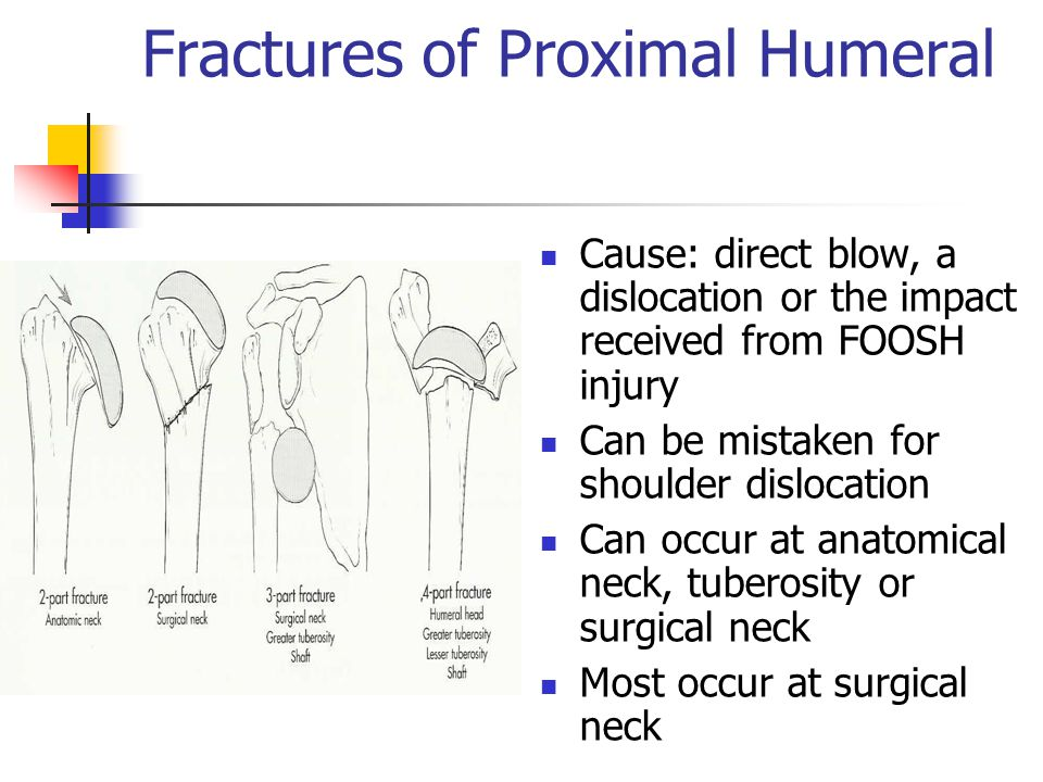 Fractures of Proximal Humeral