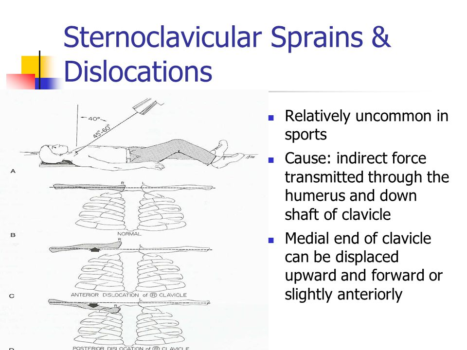 Sternoclavicular Sprains & Dislocations