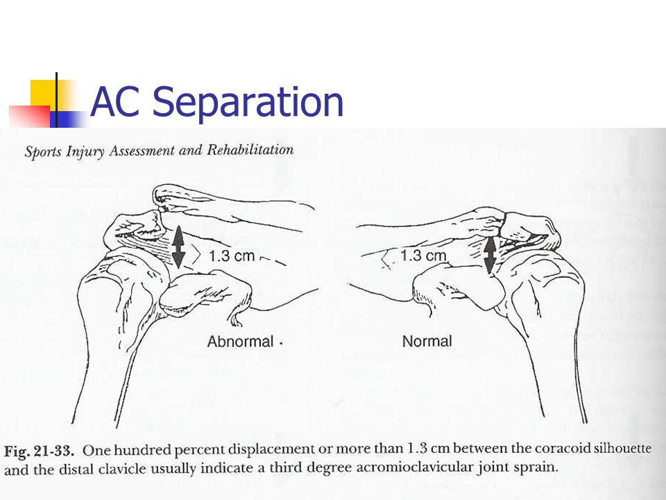 AC Separation