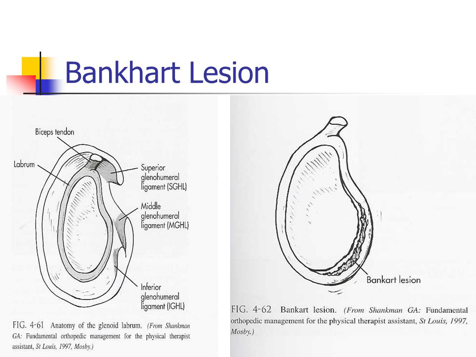 Bankhart Lesion