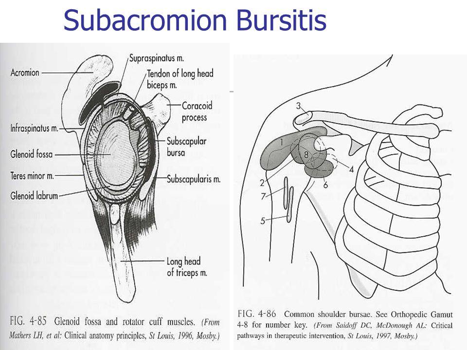 Subacromion Bursitis