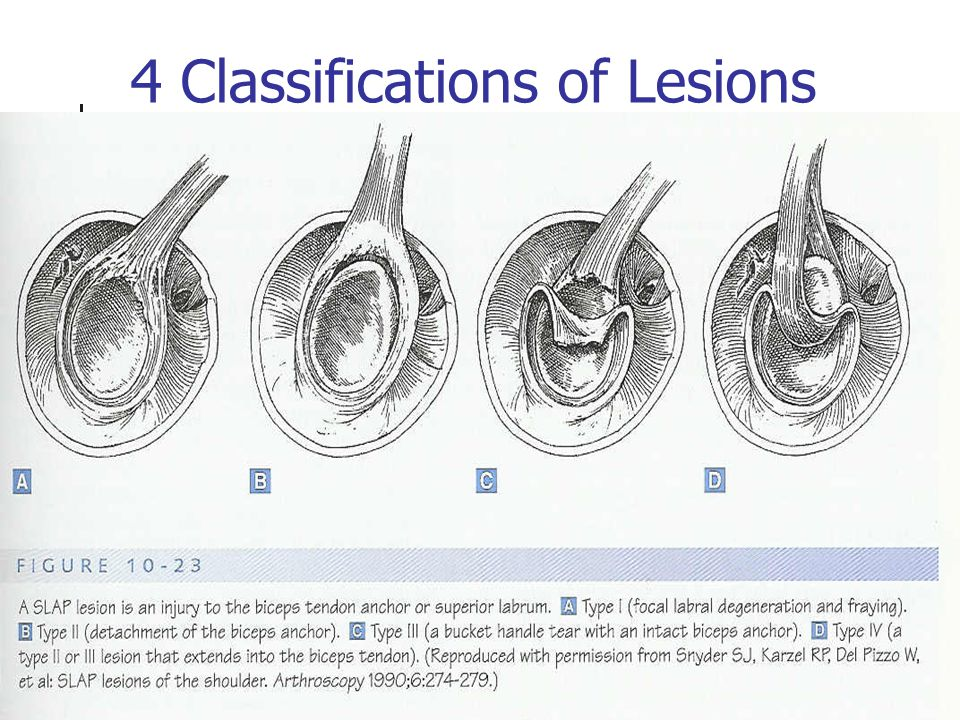 4 Classifications of Lesions