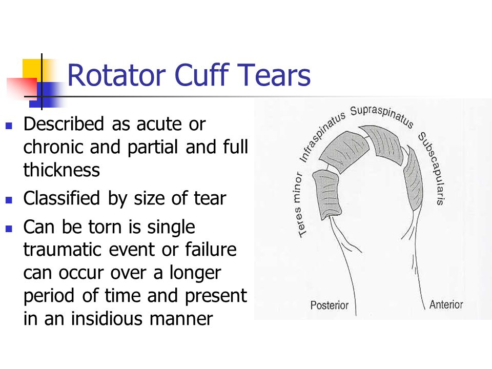 Rotator Cuff Tears Described as acute or chronic and partial and full thickness. Classified by size of tear.