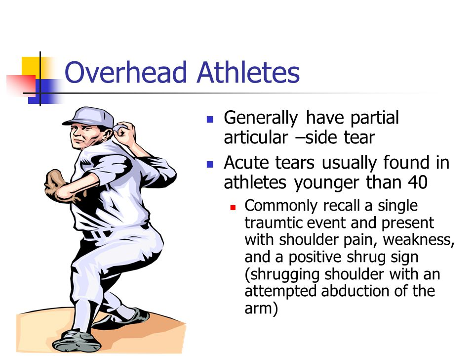 Overhead Athletes Generally have partial articular –side tear
