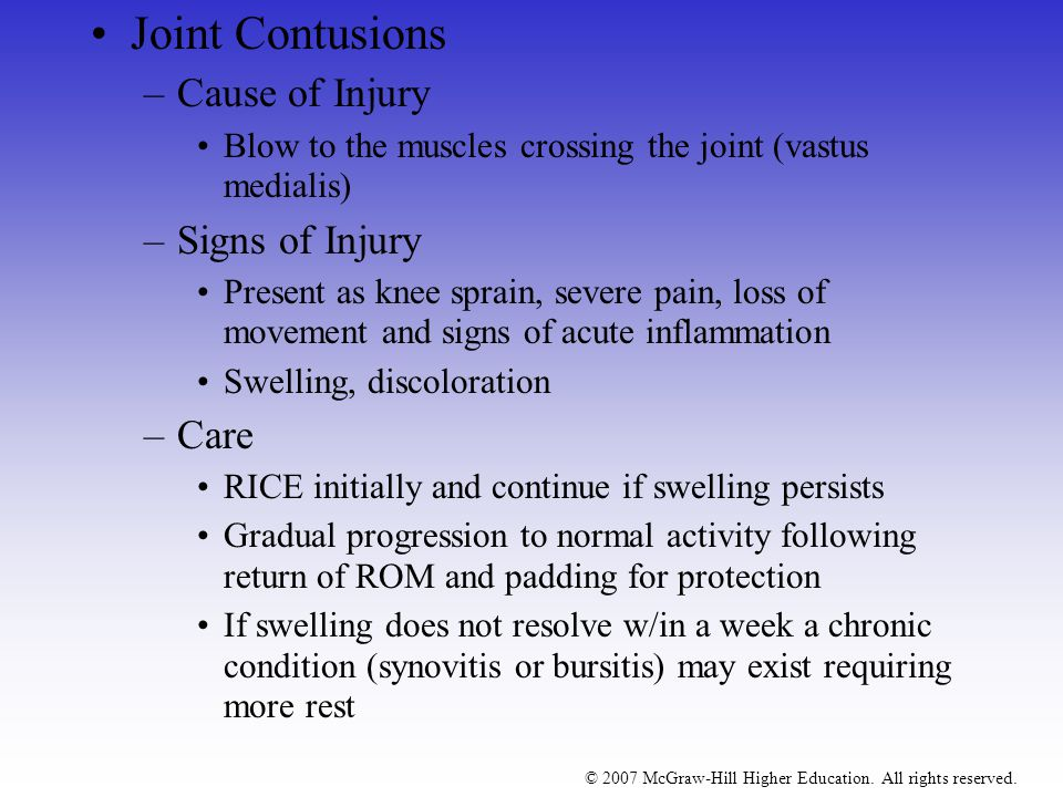 Joint Contusions Cause of Injury Signs of Injury Care
