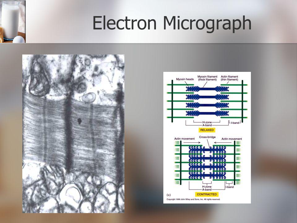 Electron Micrograph