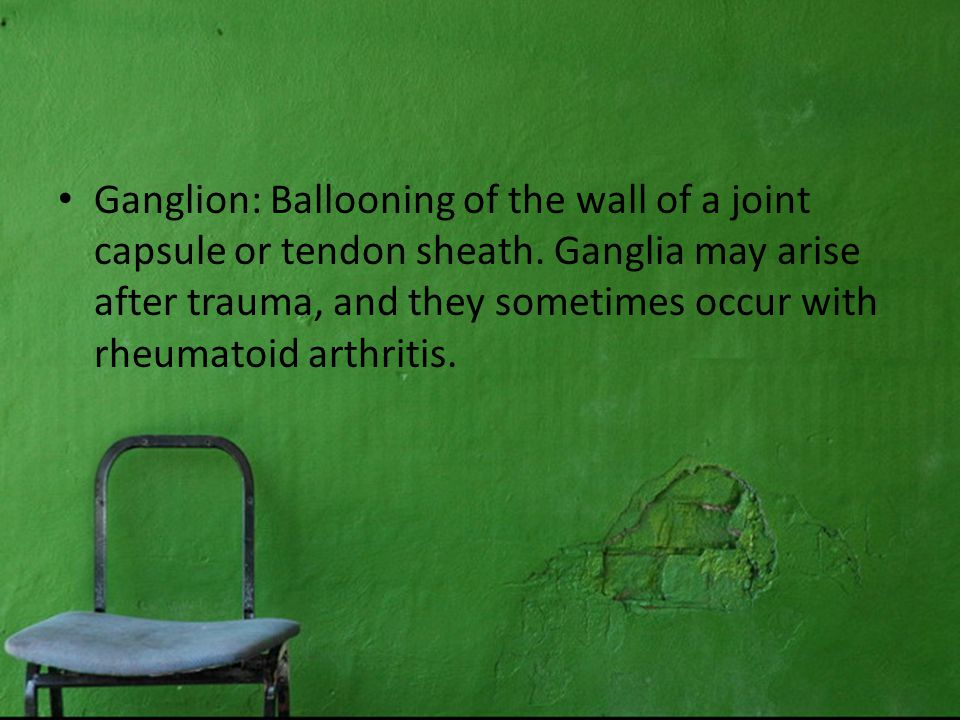 Ganglion: Ballooning of the wall of a joint capsule or tendon sheath