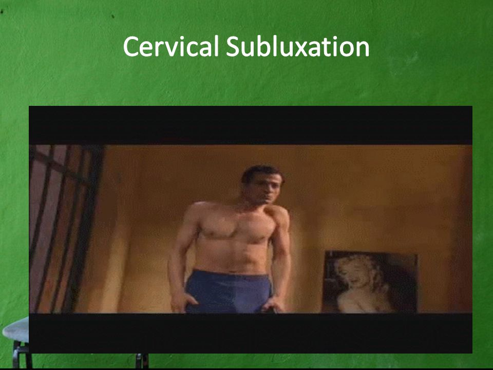 Cervical Subluxation