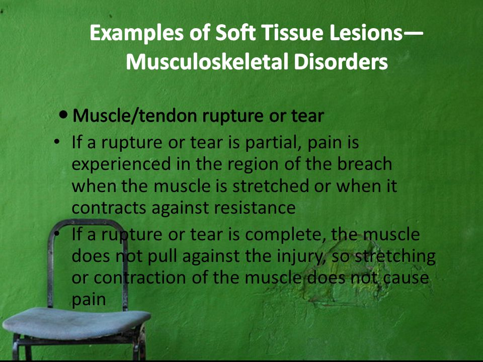 Examples of Soft Tissue Lesions— Musculoskeletal Disorders