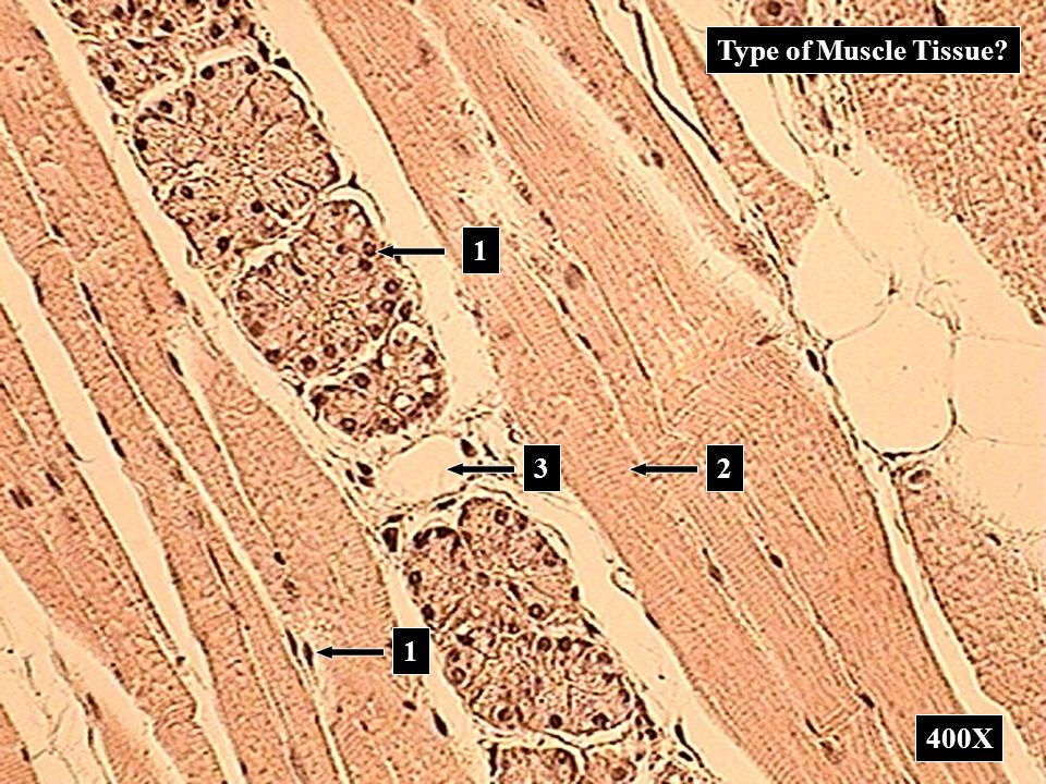 Type of Muscle Tissue 1 3 2 1 400X