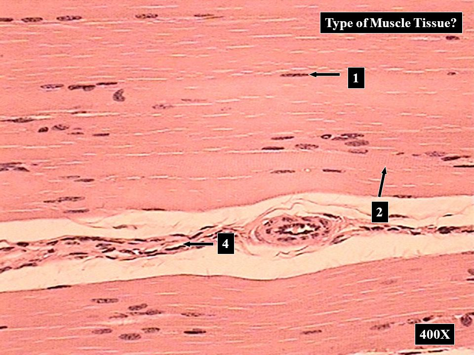 Type of Muscle Tissue 1 2 4 400X