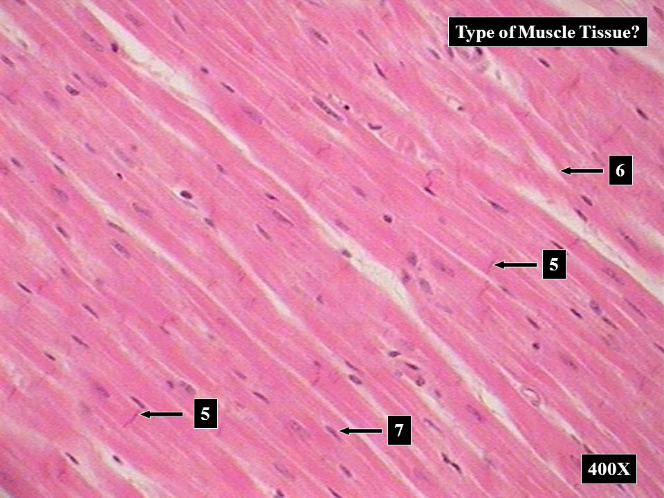 Type of Muscle Tissue 6 5 5 7 400X