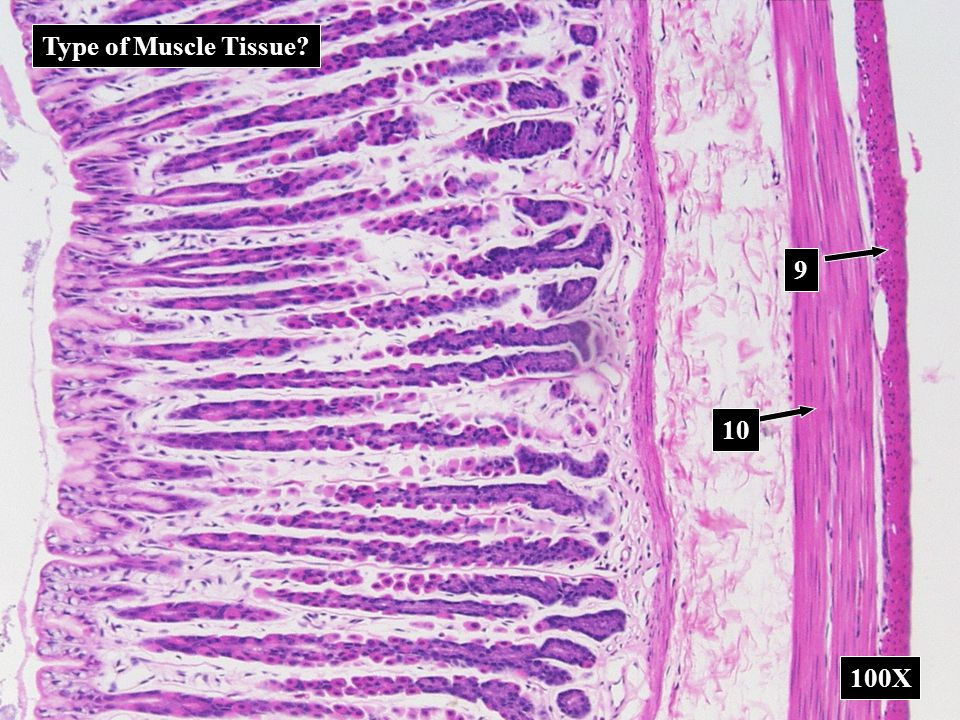 Type of Muscle Tissue 9 10 100X