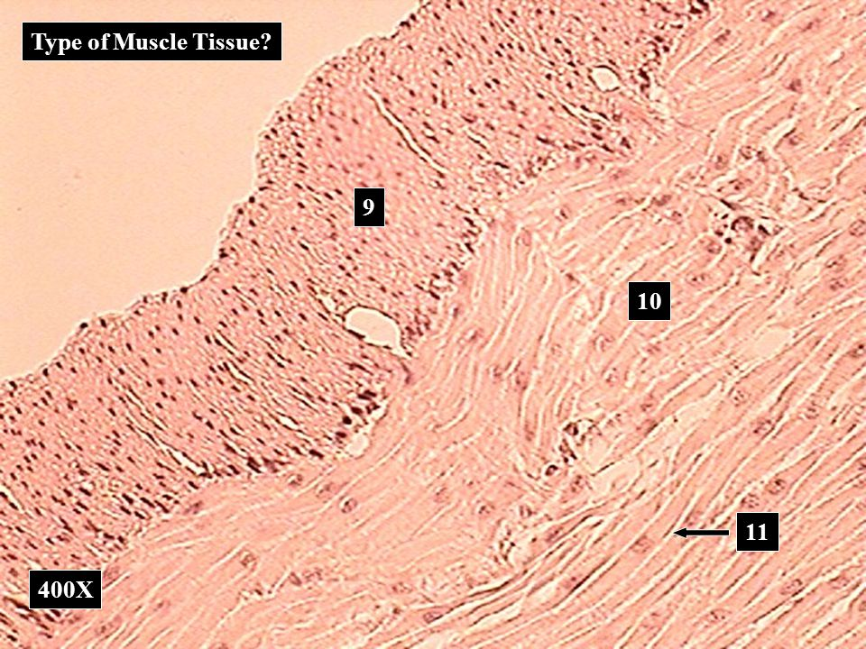 Type of Muscle Tissue 9 10 11 400X