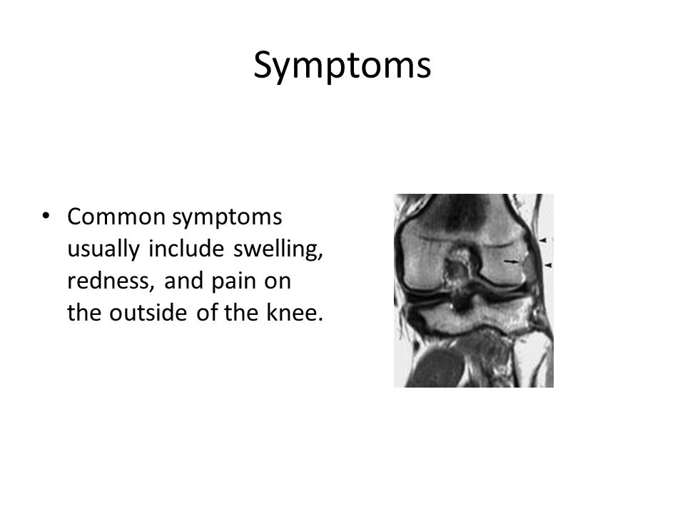 Symptoms Common symptoms usually include swelling, redness, and pain on the outside of the knee.