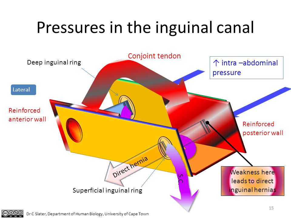 Pressures in the inguinal canal