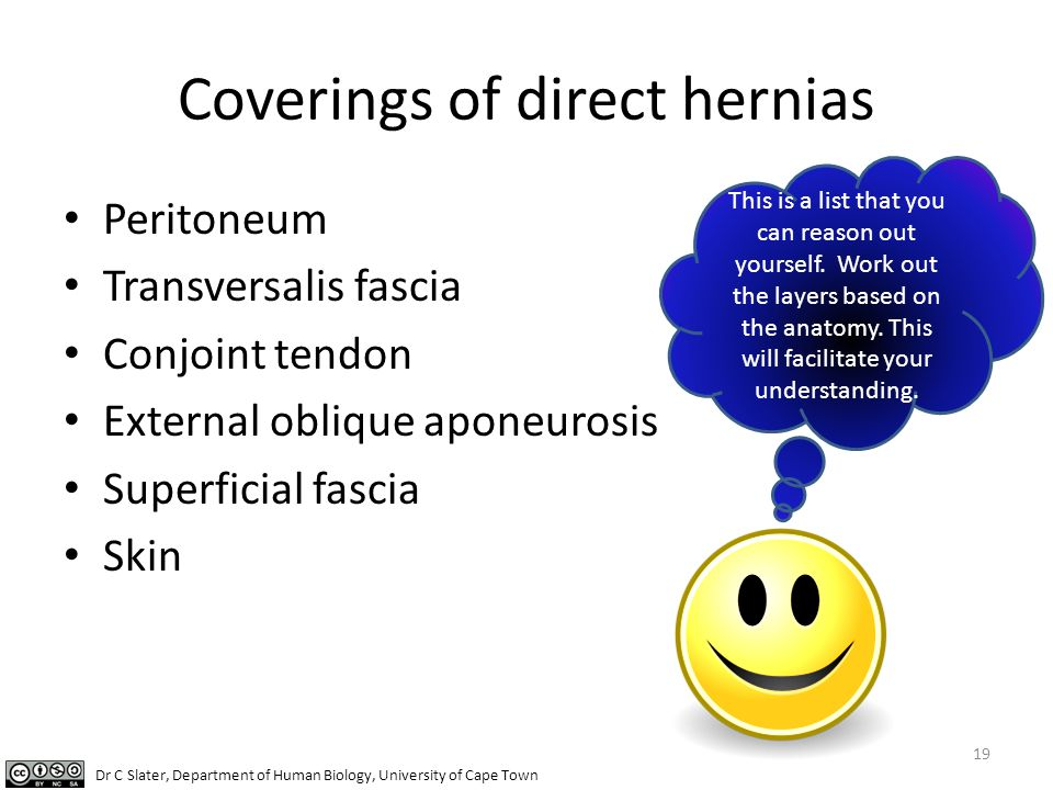 Coverings of direct hernias