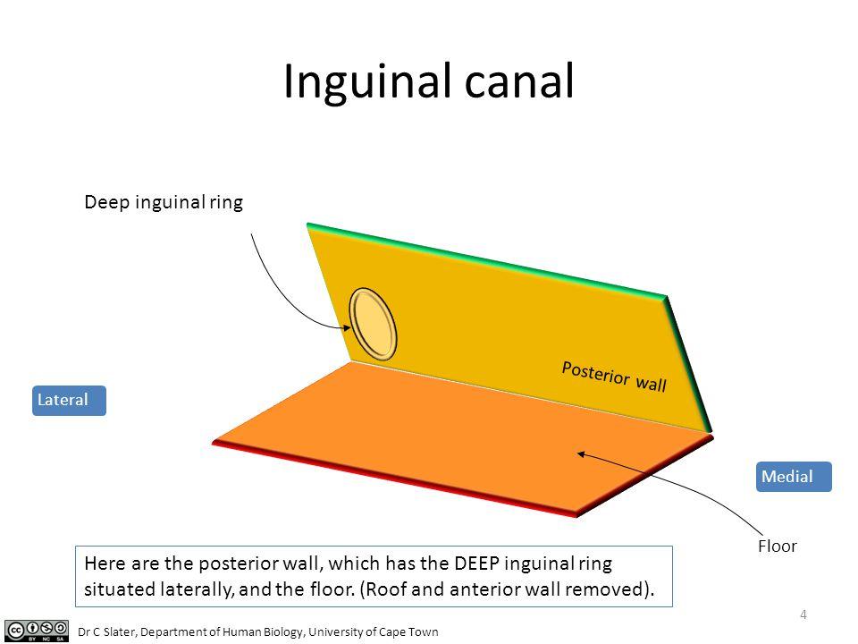 Inguinal canal Deep inguinal ring