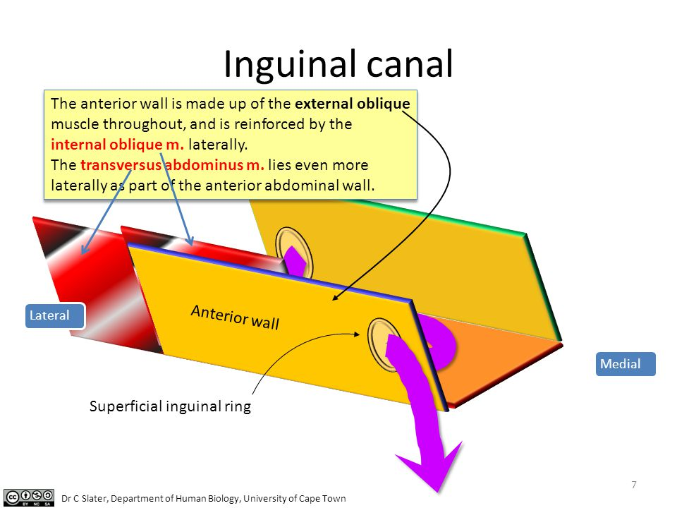 Inguinal canal The anterior wall is made up of the external oblique muscle throughout, and is reinforced by the internal oblique m. laterally.