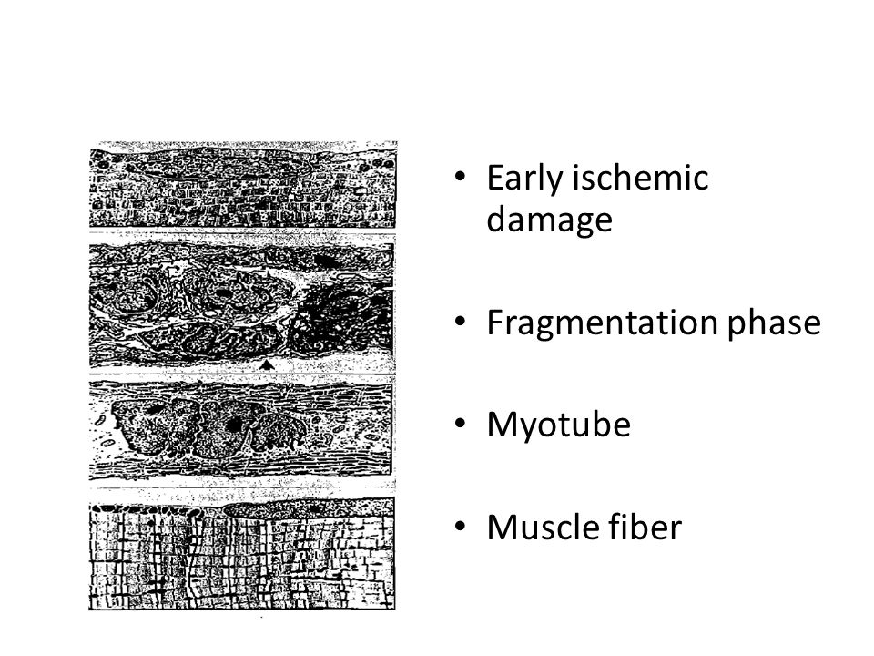 Early ischemic damage Fragmentation phase Myotube Muscle fiber