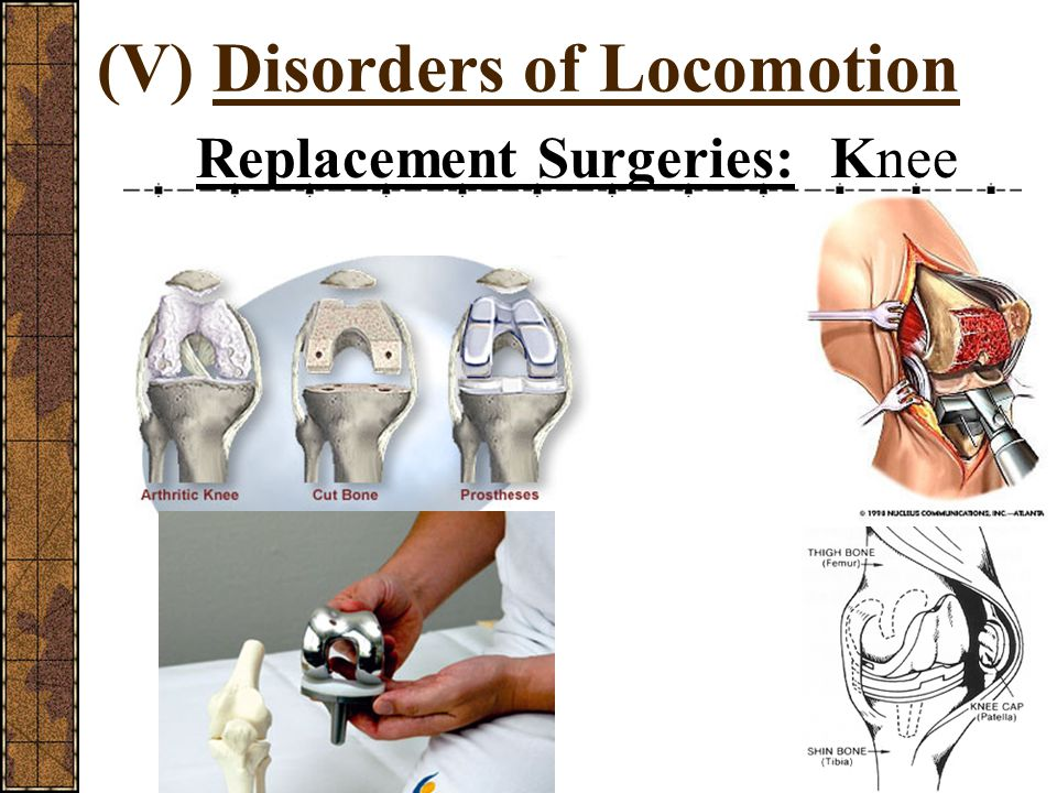 (V) Disorders of Locomotion