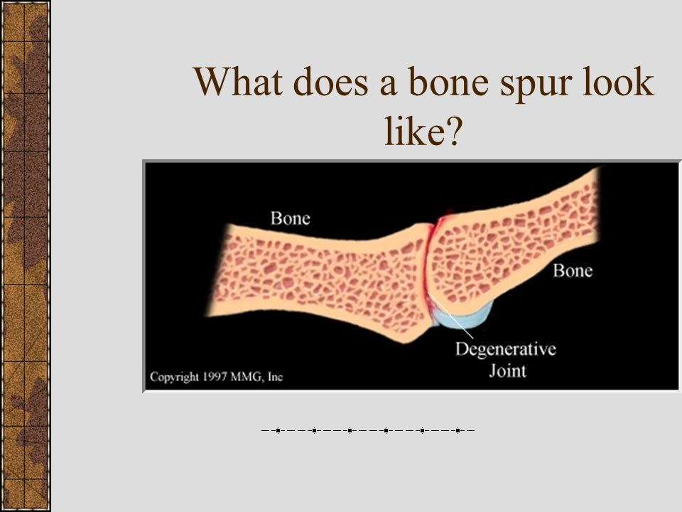 What does a bone spur look like